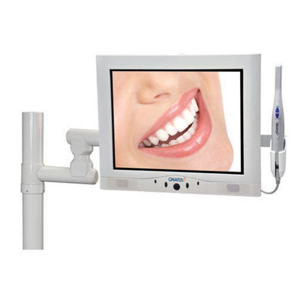 dental-11-Intraoral-camera.jpg